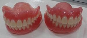 入れ歯画像4